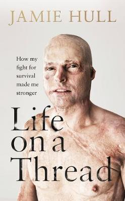 Life on a Thread: How my fight for survival made me stronger